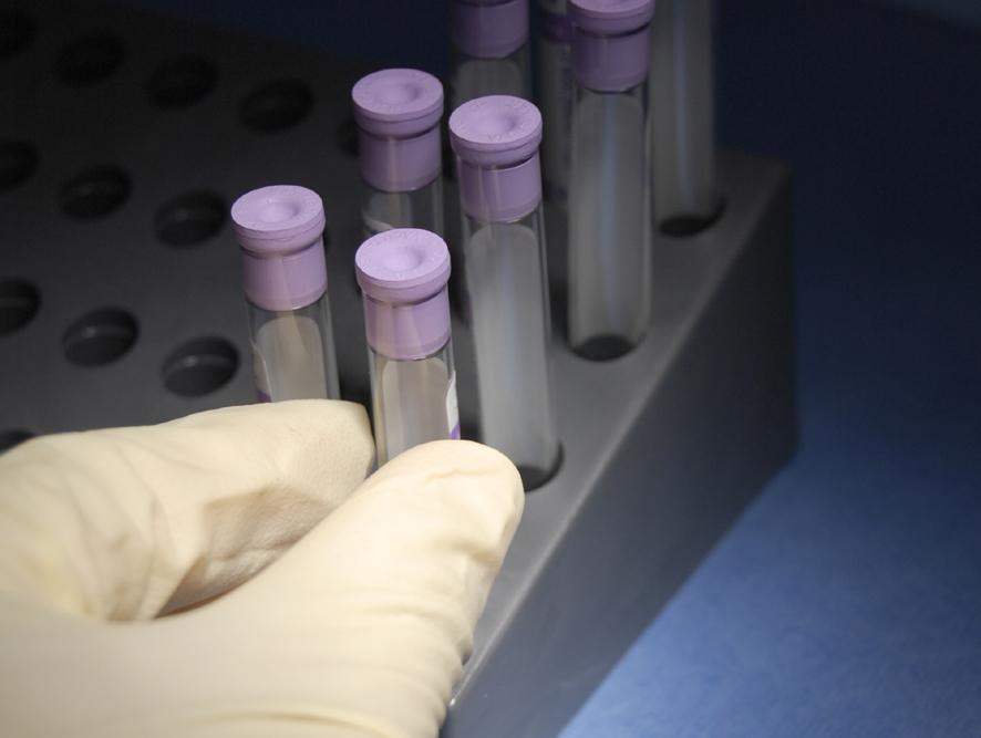 Cara Matikan Gen Kolesterol dengan Nanoteknologi