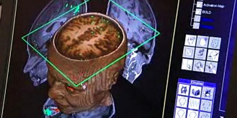 Ilmuwan Ciptakan Chip untuk Tumbuhkan Jaringan Saraf Otak