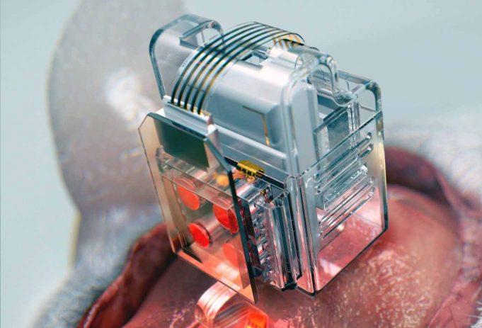 Memanipulasi Sel-sel Otak Menggunakan Smartphone